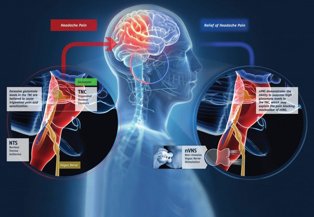 gammaCore: dispositivo realizzato dalla electroCore per la cura dell'emicrania