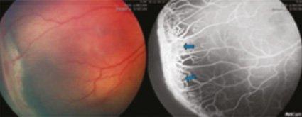 Fluorangiografia vasi retinici ROP