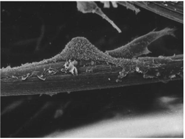 interazione cellula ECM