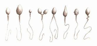 anomalie morfologiche spermatozoi sperm morfologia morphology