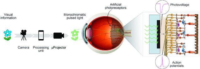 protesi visiva array elettrodi microproiettore fotovoltaico