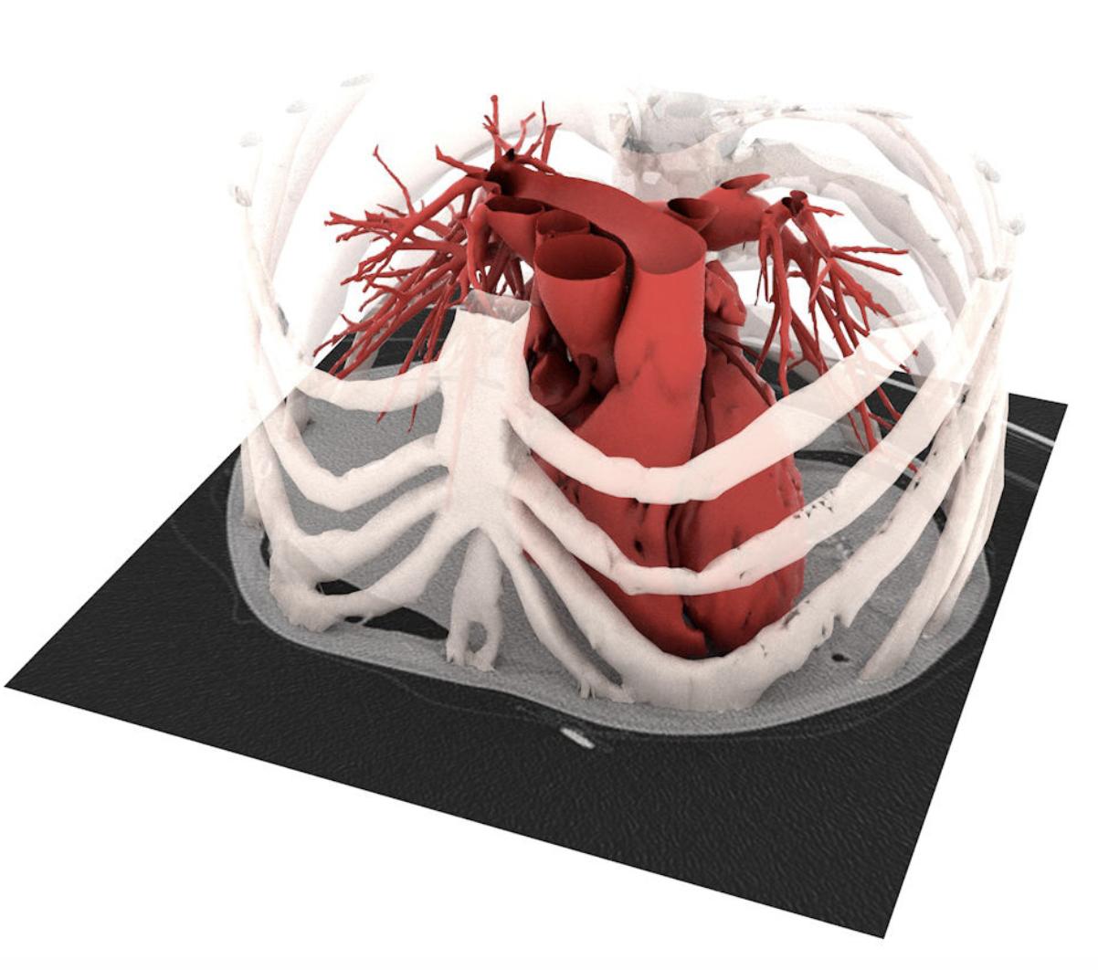 artiness olografia medica ricostruzione anatomia cuore