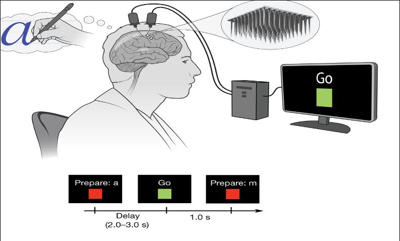 schema BCI interfaccia cervello computer impianto neurale