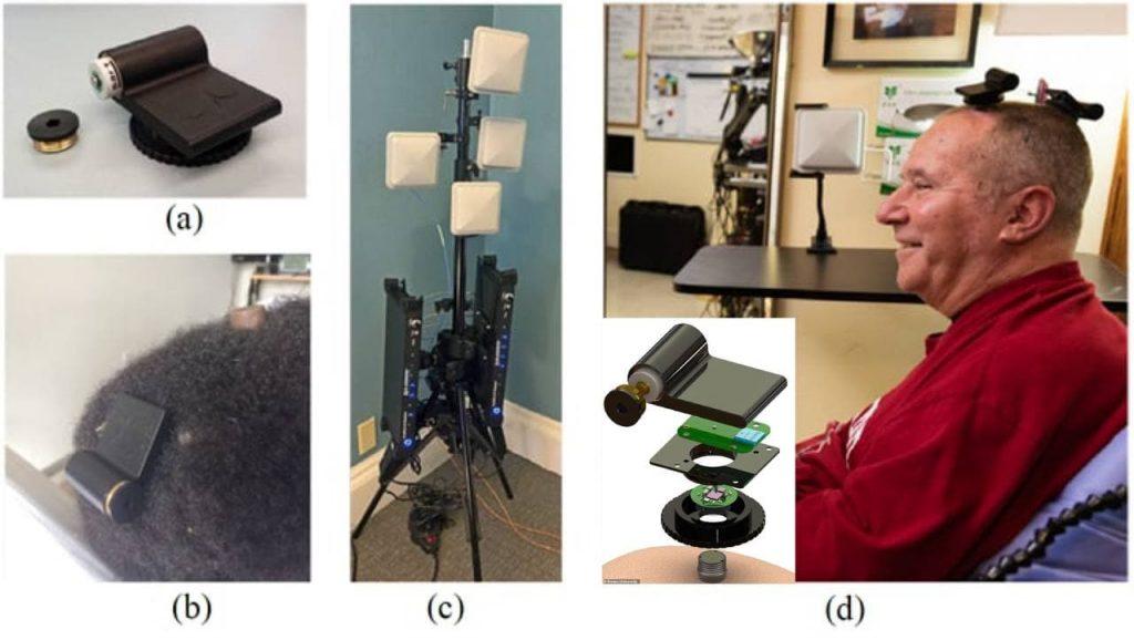 Paziente Test clinici Wireless Antenna Interfaccia Neurale BCI corticale