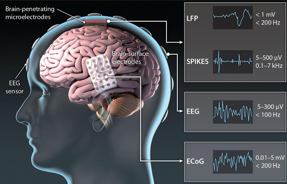 Cervello Interfaccia Neurale BCI Cervello   Neuro Elettrodi Segnali