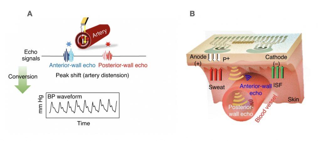cute generazione segnale ultrasuoni trasduttore piezoelettrico
