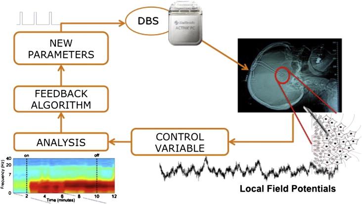 schema DBS ciclo chiuso adattivo