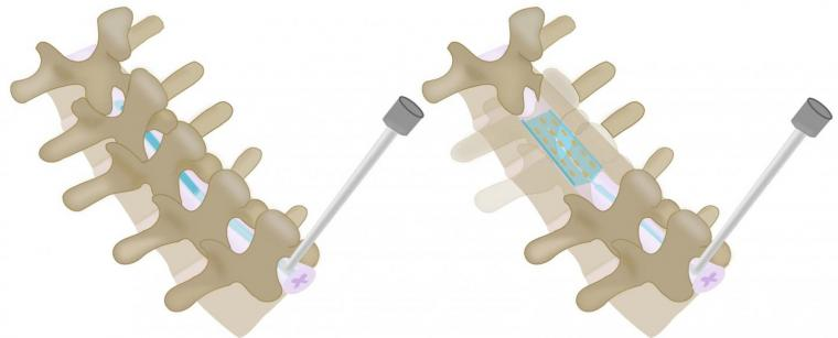 tecnica dispositivo gonfiabile SCS schiena Colonna vertebrale