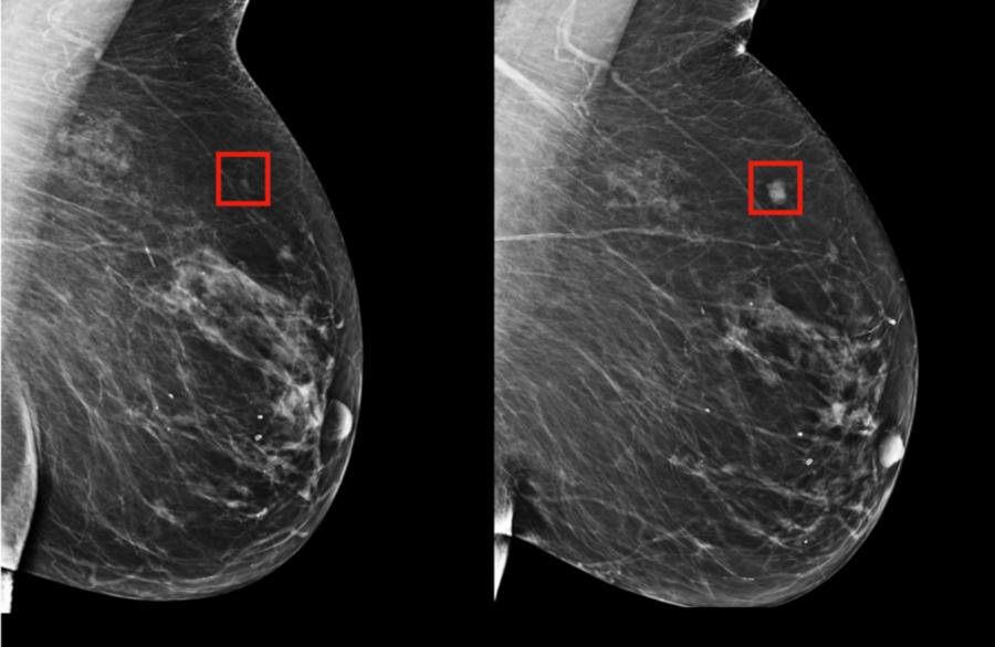 Intelligenza artificiale cancro seno prevenzione