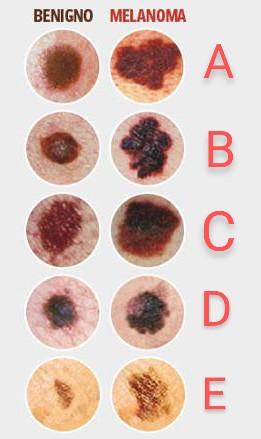 Diagnosi melanoma regola ABCDE