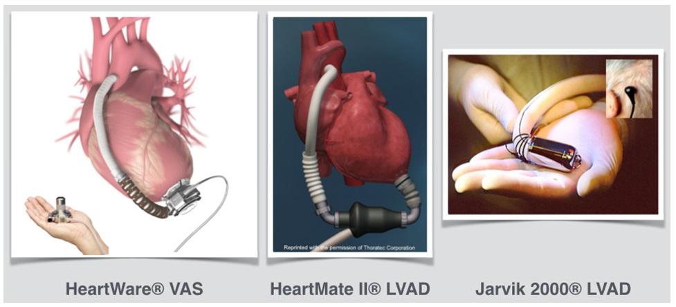 dispositivo VAD cuore impianto