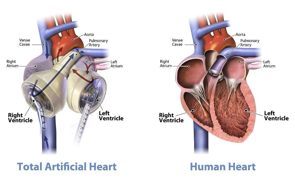 cuore artificiale cuore meccanico dispositivo impiantabile