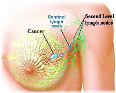 linfonodosentinella cancro stazioni linfonodali